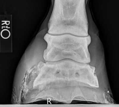X-ray of White Line Disease